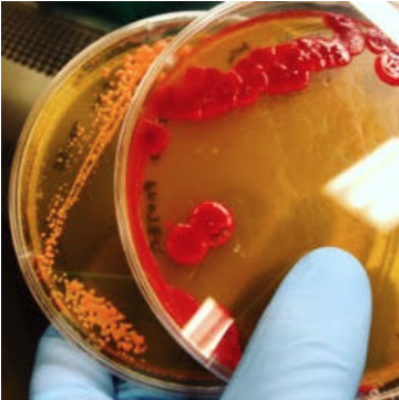 bacteria1